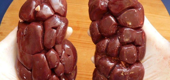 Co stojí za onemocněním ledvin?